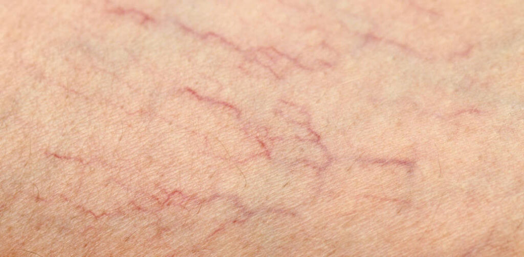 Closeup picture of spider veins