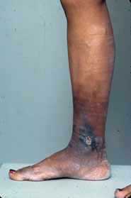 picture of leg ulcer