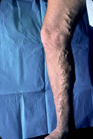 picture of leg with varicose vein