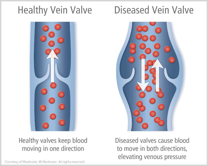 Vein Valve Disease