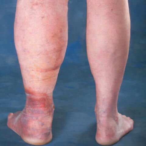 5 Stages Of Vein Disease That Need To Be Taken Seriously