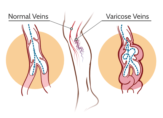 Unhealthy varicose veins