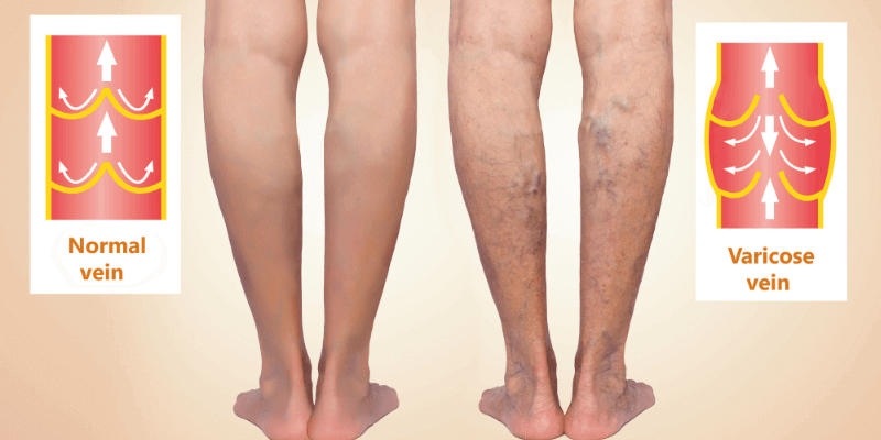 Normal Vein vs Varicose Vein Picture