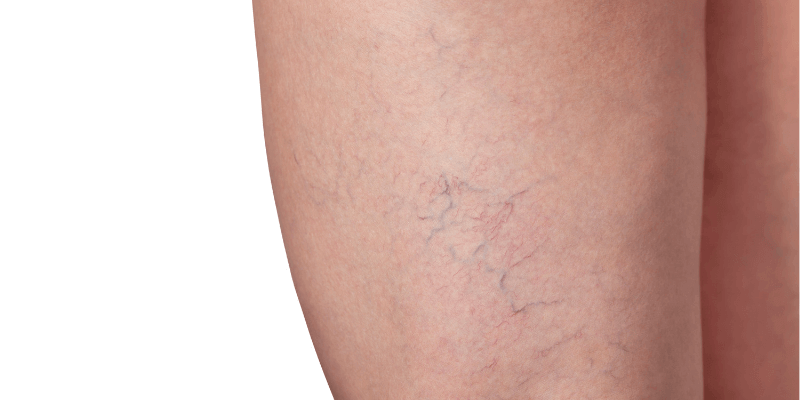 spider vein on thigh